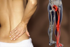 low back pain, back pain, Virginia Orthopaedic & Spine Specialists