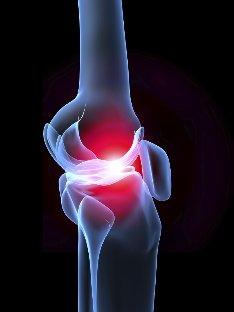 Virginia Orthopaedic & Spine Specialists, knee replacement, fast recovery