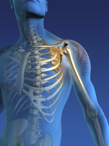 shoulder pain, rotator cuff tear, shoulder replacement, total shoulder replacement, shoulder arthroplasty